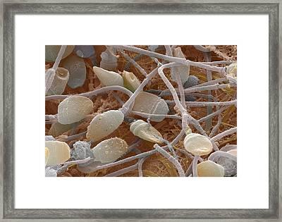 Sperm, Sem Framed Print by Power And Syred