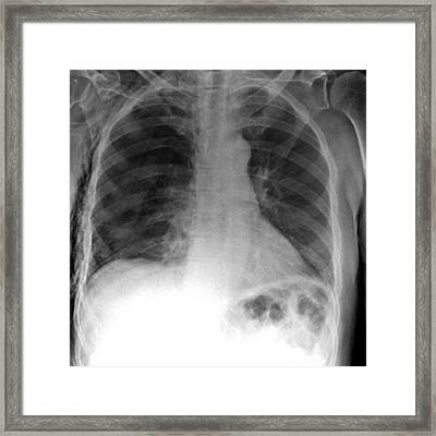 Tension Pneumothorax, X-ray Framed Print by Du Cane Medical Imaging Ltd