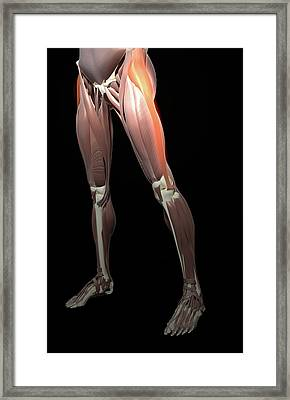 Thigh/lower Limb Abduction Framed Print by MedicalRF.com
