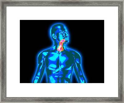 Throat Pain Framed Print by Christian Darkin