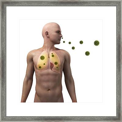 Viral Lung Infection, Conceptual Artwork Framed Print by Sciepro