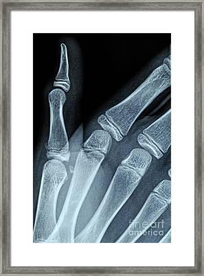 X-ray Image Of Boy's Hand Framed Print by Sami Sarkis