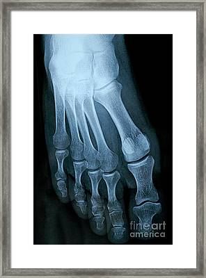 X-ray Image Of Mature Man's Feet Framed Print by Sami Sarkis