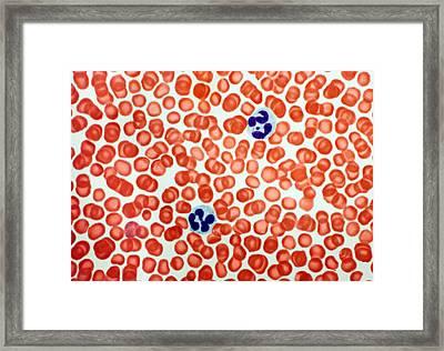 Human Blood Cells, Light Micrograph Framed Print by Steve Gschmeissner