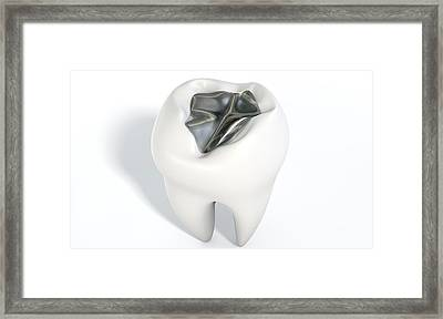 Tooth With Lead Filling Framed Print by Allan Swart