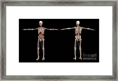 3d Rendering Of Human Skeleton Framed Print by Stocktrek Images