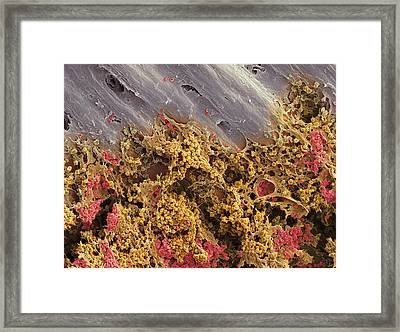 Bone Marrow, Sem Framed Print by Steve Gschmeissner