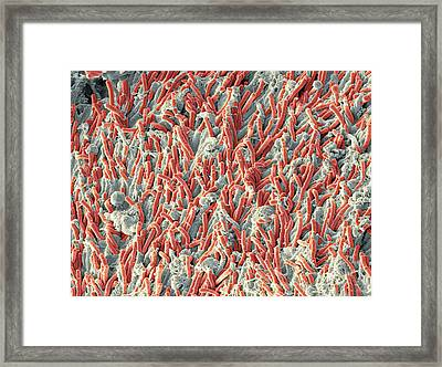 Dental Plaque, Sem Framed Print by Steve Gschmeissner