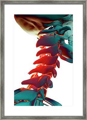 Bones Of The Neck Framed Print by MedicalRF.com