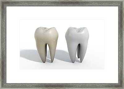 Dirty Clean Tooth Comparison Framed Print by Allan Swart