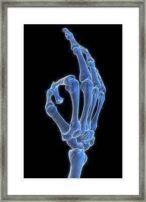 Hand Gesture Framed Print by MedicalRF.com
