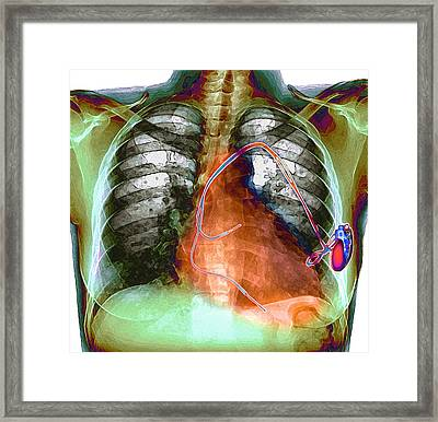 Heart Pacemaker, X-ray Framed Print by Du Cane Medical Imaging Ltd