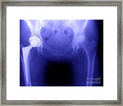 Hip Replacement Framed Print by Ted Kinsman