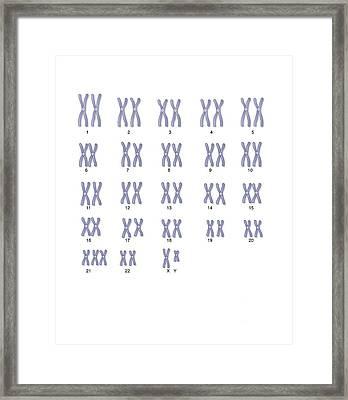 Male Down's Syndrome Karyotype, Artwork Framed Print by Peter Gardiner