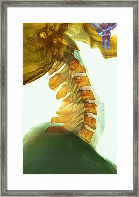 Neck Vertebrae Flexed, X-ray Framed Print by