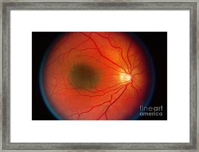 Nevus In The Retina Framed Print by Science Source