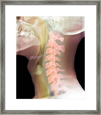 Normal Neck, X-ray Framed Print by Du Cane Medical Imaging Ltd