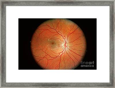 Normal Retina Framed Print by Science Source