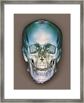 Normal Skull, 3d Ct Scan Framed Print by Zephyr