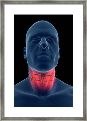 Sore Throat Framed Print by MedicalRF.com