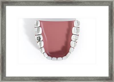 Teeth With Lead Filling Framed Print by Allan Swart