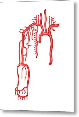 Arterial System Of The Upper Body Metal Print by Asklepios Medical Atlas