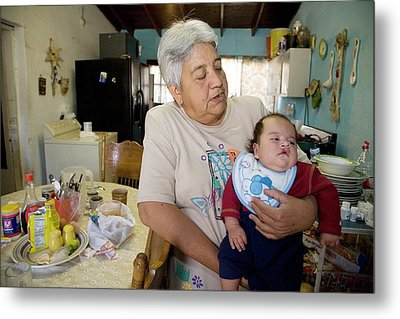 Baby With A Cleft Lip Metal Print by Jim West