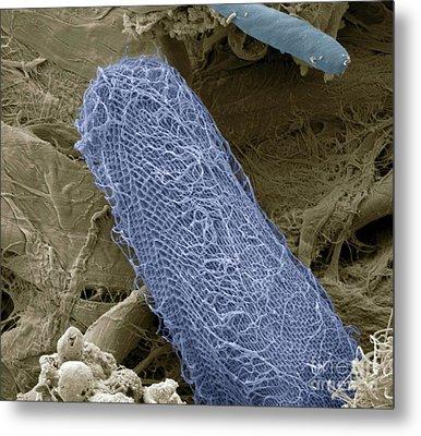 Ciliate Protozoan Sem Metal Print by Steve Gschmeissner