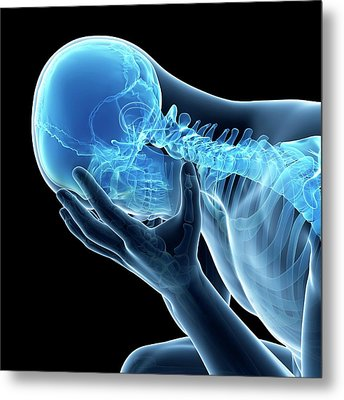 Human Skeletal System Metal Print by Sebastian Kaulitzki