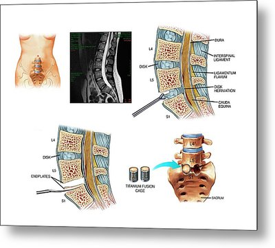 Surgery To Fuse The Lumbar Spine Metal Print by John T. Alesi