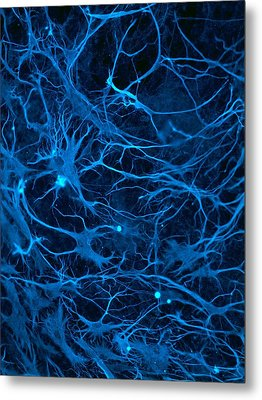 Stem Cell-derived Nerve Cells Metal Print by Science Photo Library