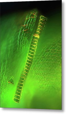 Desmid On Sphagnum Moss Metal Print by Marek Mis