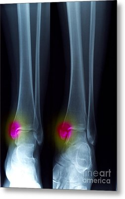 Ankle Fracture Metal Print by Scott Camazine