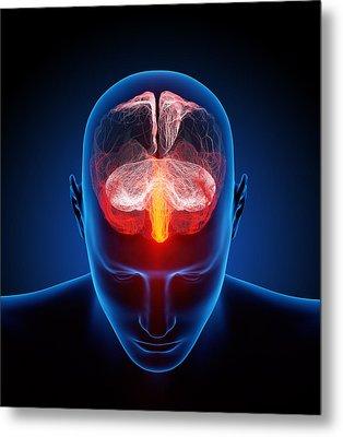 Human Brain Metal Print by Johan Swanepoel