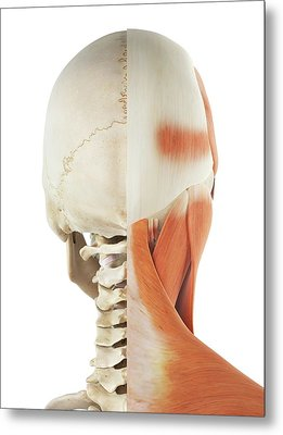 Human Head And Neck Muscles Metal Print by Sciepro