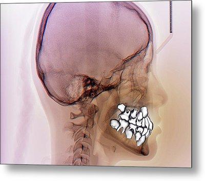 Normal Teeth Metal Print by Zephyr