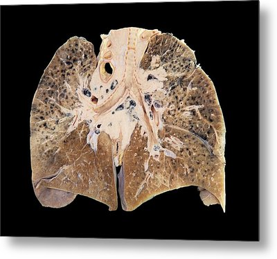 Primary Lung Cancer Metal Print by Microscape