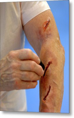 Simulated Arm Lacerations Metal Print by Public Health England