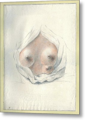 Supernumerary Nipple Metal Print by National Library Of Medicine
