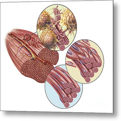 Torn Muscle Fibers With Healing Stages Metal Print by TriFocal Communications