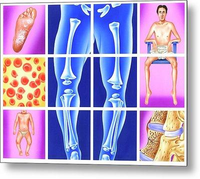 Vitamin Deficiency Symptoms Metal Print by John Bavosi