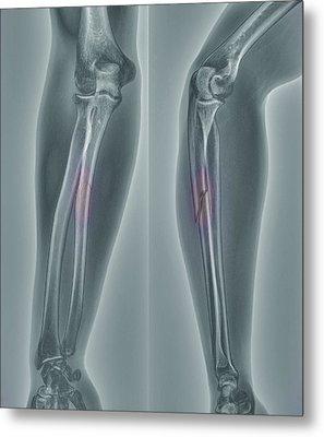 Broken Arm, X-ray Metal Print by Zephyr