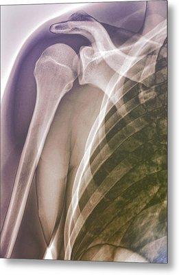 Normal Shoulder, X-ray Metal Print by Zephyr
