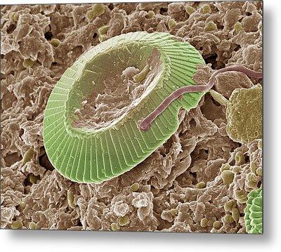 Diatom Alga, Sem Metal Print by Steve Gschmeissner