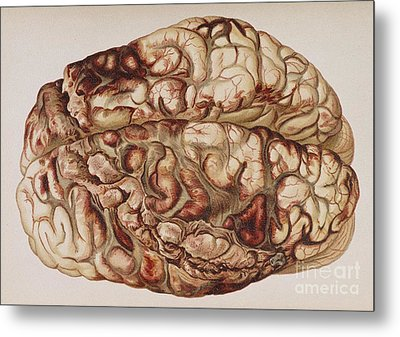Encircling Gunshot-wound In Brain, 1898 Metal Print by Science Source