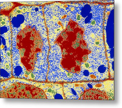 False-colour Tem Of Root Cell Division Metal Print by Dr Jeremy Burgess