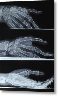 Hand X-ray Metal Print by Sami Sarkis