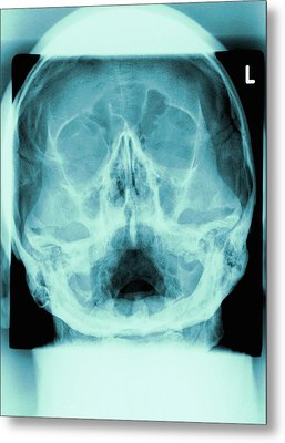 Healthy Skull, X-ray Metal Print by Miriam Maslo