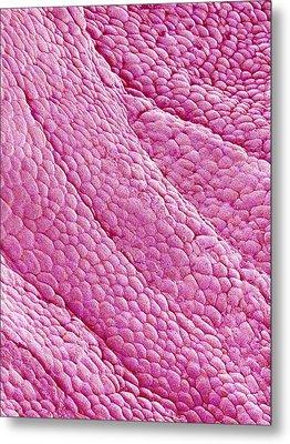 Internal Wall Of Uterus, Sem Metal Print by Susumu Nishinaga