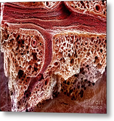 Mouse Lung, Sem Metal Print by Science Source